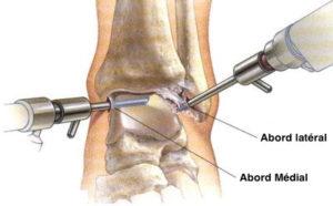 arthroscopie-anterieure-cheville