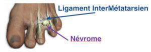 nevrome-morton-3